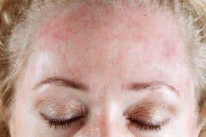 Nachtkerzenöl bei Neurodermitis