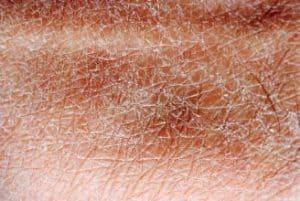 Nachtkerzenöl gegen trockene Haut